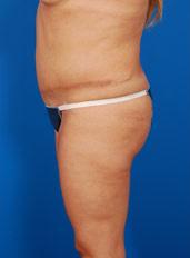 Liposuction Photos Case: 2 - before