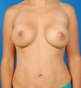 Liposuction Photos Case: 3 - after