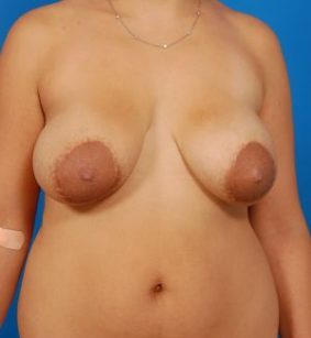 Liposuction Photos Case: 3 - before