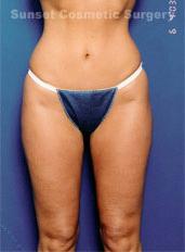 Liposuction Photos Case: 4