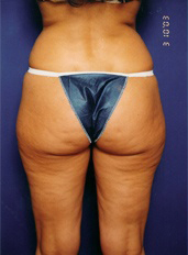 Liposuction Photos Case: 4 - before