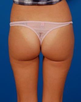 Liposuction Photos: Case 4779 - after