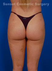 Liposuction Photos Case: 5 - after
