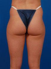 Liposuction Photos Case: 5 - before