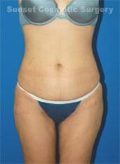 Liposuction Photos Case: 6 - after