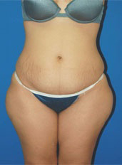 Liposuction Photos Case: 6 - before