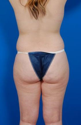 Liposuction Photos Case: 7 - before