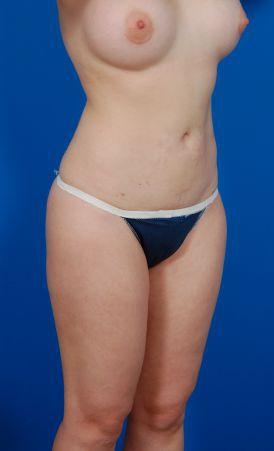 Liposuction Photos Case: 7 - After 2 Months