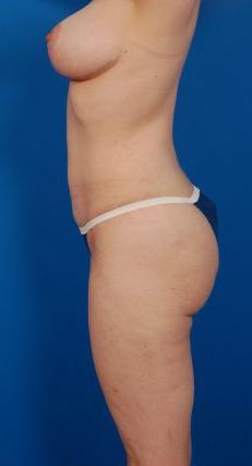 Liposuction Photos Case: 8 - after