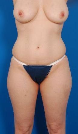 Liposuction Photos Case: 8 - before