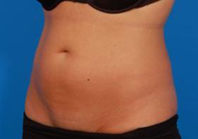 Liposuction Photos Case: 9 - after
