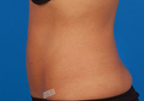 Liposuction Photos Case: 9 - After 4 Days