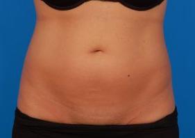 Liposuction Photos Case: 9 - before