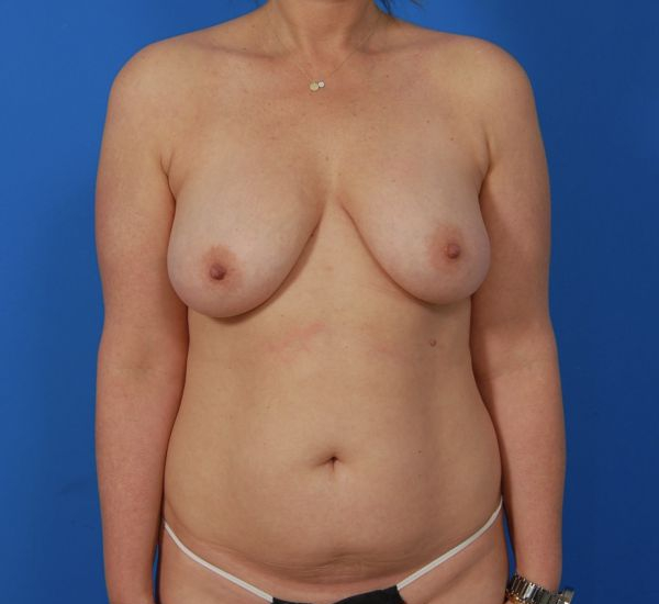 Los Angeles Mom gets her body back with Mommy Makeover Surgery