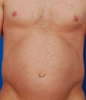 Belly Button Surgery Photos: Case 3