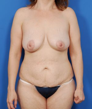 Mommy Makeover – Abdominoplasty, Liposuction and Benelli Breast Augmentation