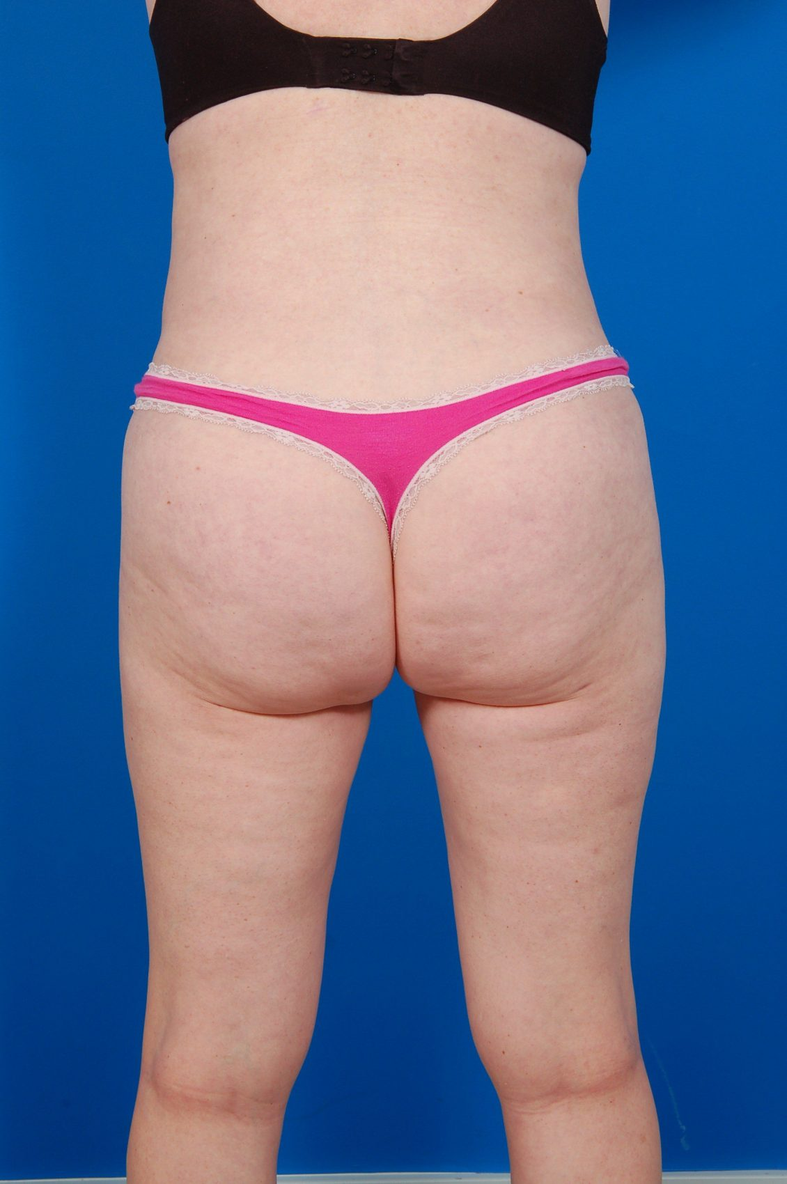 Tummy Tuck Photos: Case 11 - After 1 Year