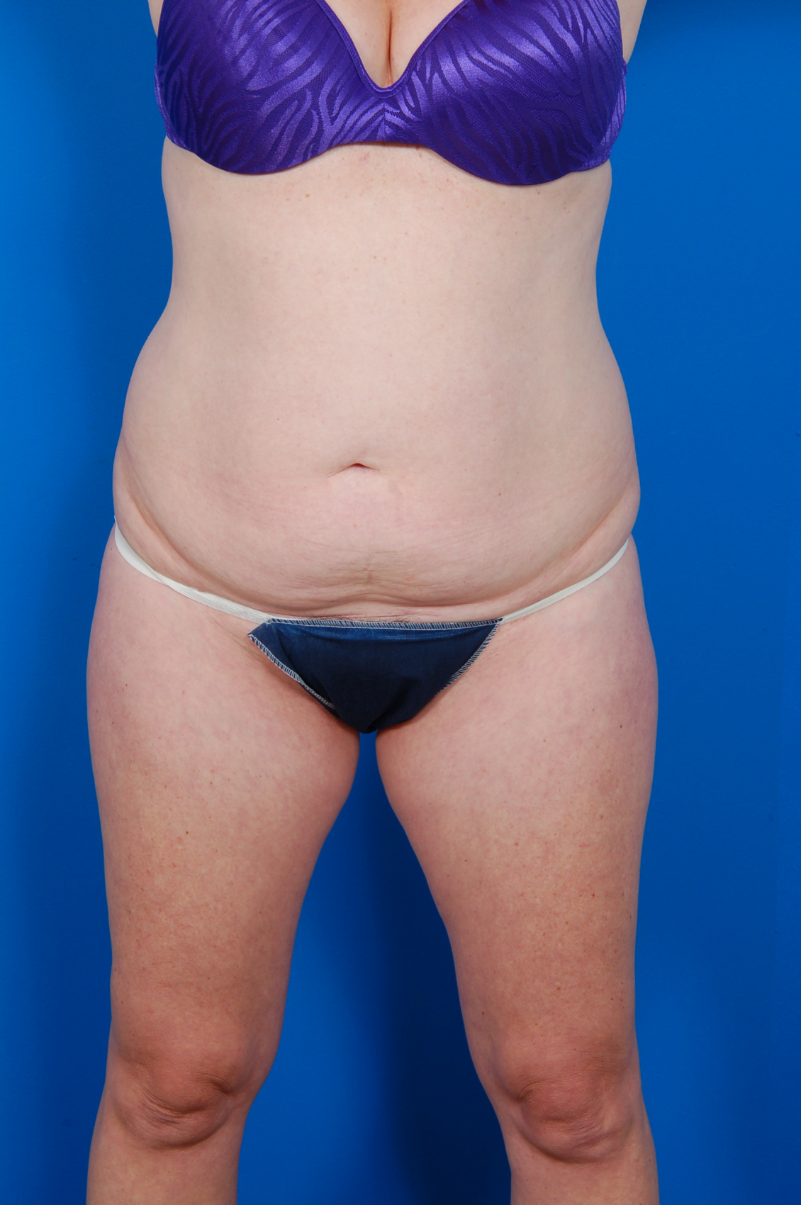 Tummy Tuck Photos: Case 11 - before