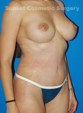 Tummy Tuck Photos: Case 7 - after
