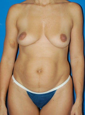 Tummy Tuck Photos: Case 7 - before