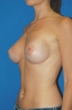 Natural Silicone Breast Augmentation Case 4