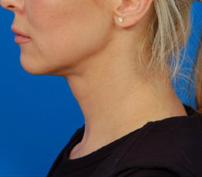 Neck Lift using Laser Liposuction - after