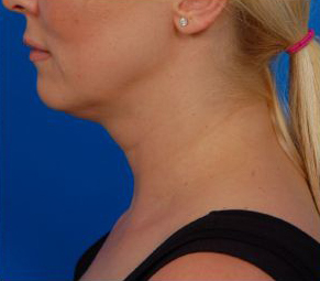 Neck Lift using Laser Liposuction - before