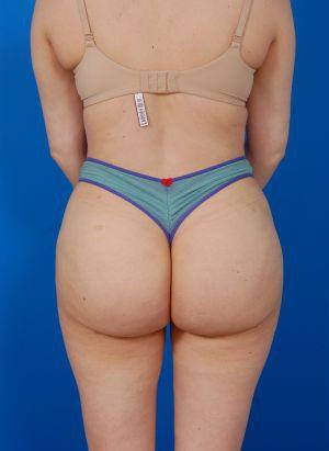 Reversal Brazilian Butt Lift Photos: Case 13 - after