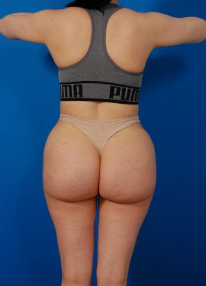 Reversal Brazilian Butt Lift Photos: Case 13 - before