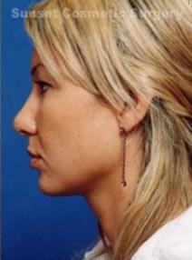 Rhinoplasty: Case 2 - after