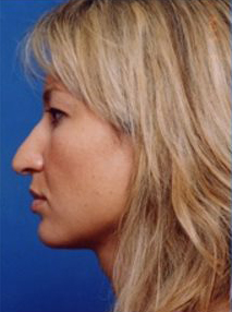 Rhinoplasty: Case 2 - before
