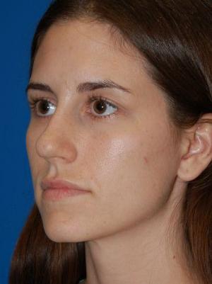 Rhinoplasty: Case 484 - After 2 Months