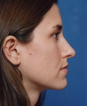 Rhinoplasty: Case 484 - before