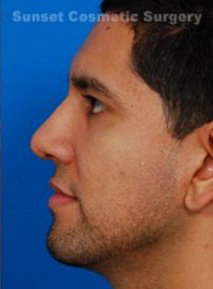Rhinoplasty (revision): Case 1 - after