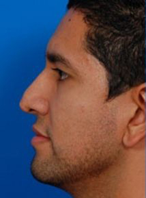 Rhinoplasty (revision): Case 1 - before