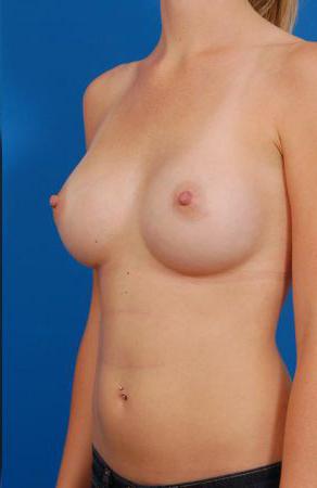 Silicone Breast Augmentation in LA Case: 6
