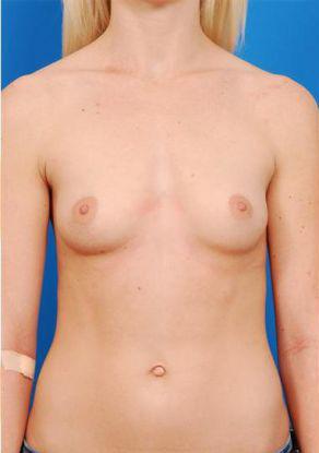 Natural Silicone Breast Augmentation Case 5