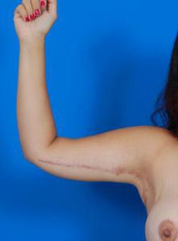Arm Lift Photos: Case 1