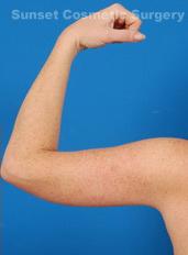 Arm Lift Photos: Case 2 - after