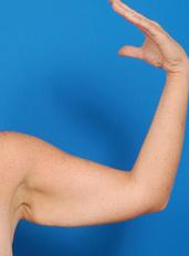 Arm Lift Photos: Case 2 - before