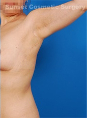 Arm Lift Photos: Case 3 - after