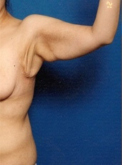 Arm Lift Photos: Case 3 - before
