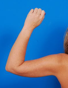 Arm Liposuction Photos: Case 10 - After 5 Months