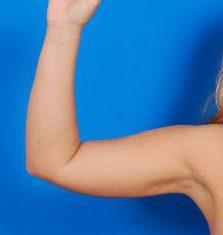 Arm Liposuction Photos: Case 10