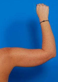 Arm Liposuction Photos: Case 10 - before