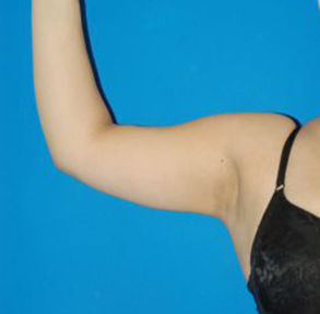 Arm Liposuction Photos: Case 1949 - After 2 Months