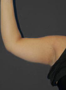 Arm Liposuction Photos: Case 1949