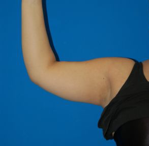 Arm Liposuction Photos: Case 1949 - before