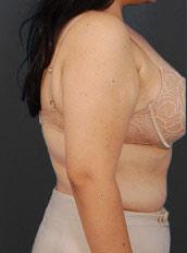 Arm Liposuction Photos: Case 4