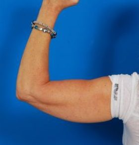 Arm Liposuction Photos: Case 6 - before